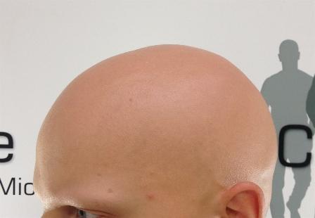 Image Alopecia Totalis (Full Head Hairloss, extreme cases of Head & body Hairloss Alopecia Univeraslis)