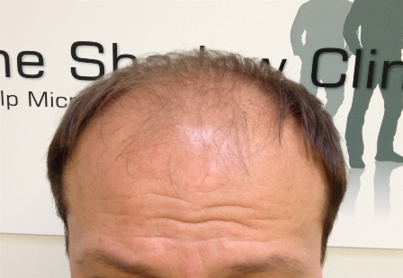 Image of typical Male Pattern Baldness Path