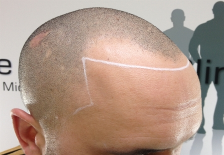 Image Receding Hairline