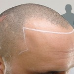 how to fix receding hairline male naturally
