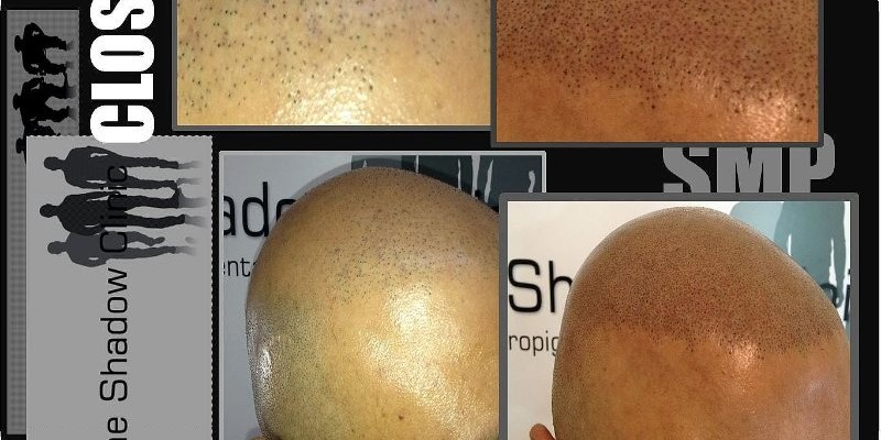 SMP Giving Hair Transplant a Boost